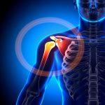 درد شانه و راه های درمان