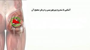 سندروم پیریفورمیس و درمان آن