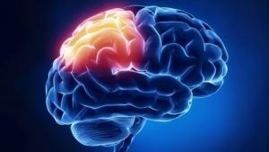 درد مرکزی مغزی